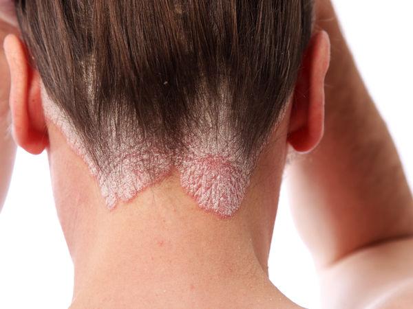psoriasis cheveux traitements